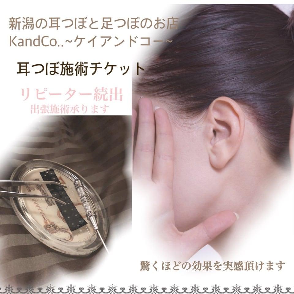 定額制耳つぼ施術チケット(クリア8〜20粒)