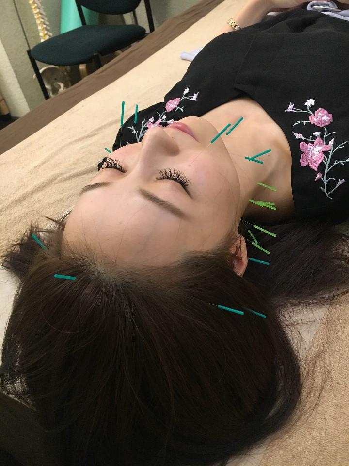 【初回特別価格】美容鍼 9,374円➡4,687円
