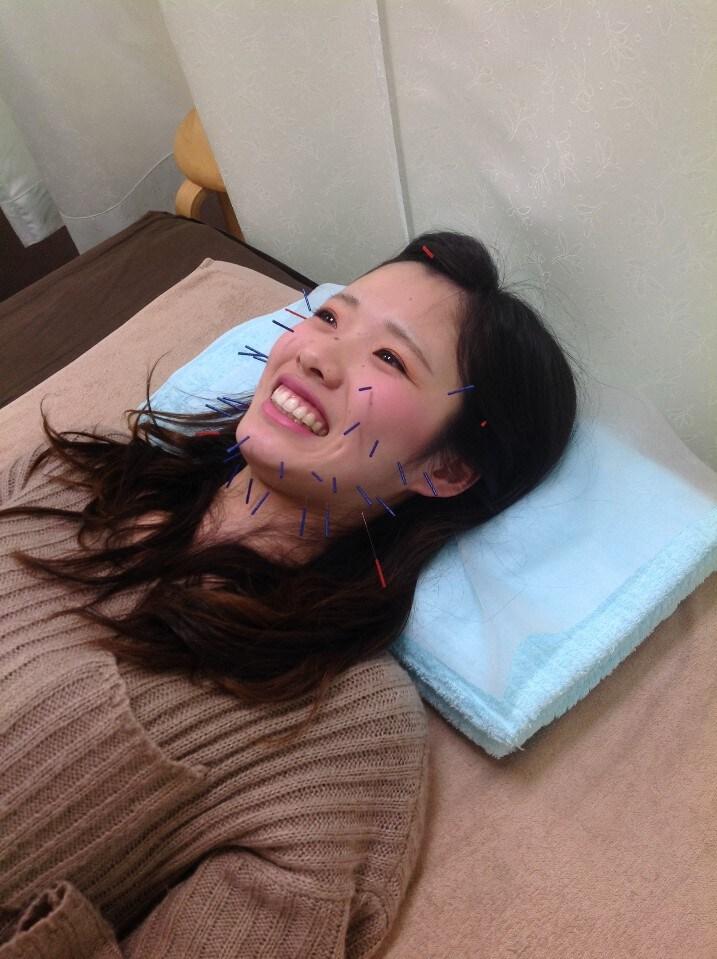 【モニター募集】美容鍼+美容整体 49000円➡29400円