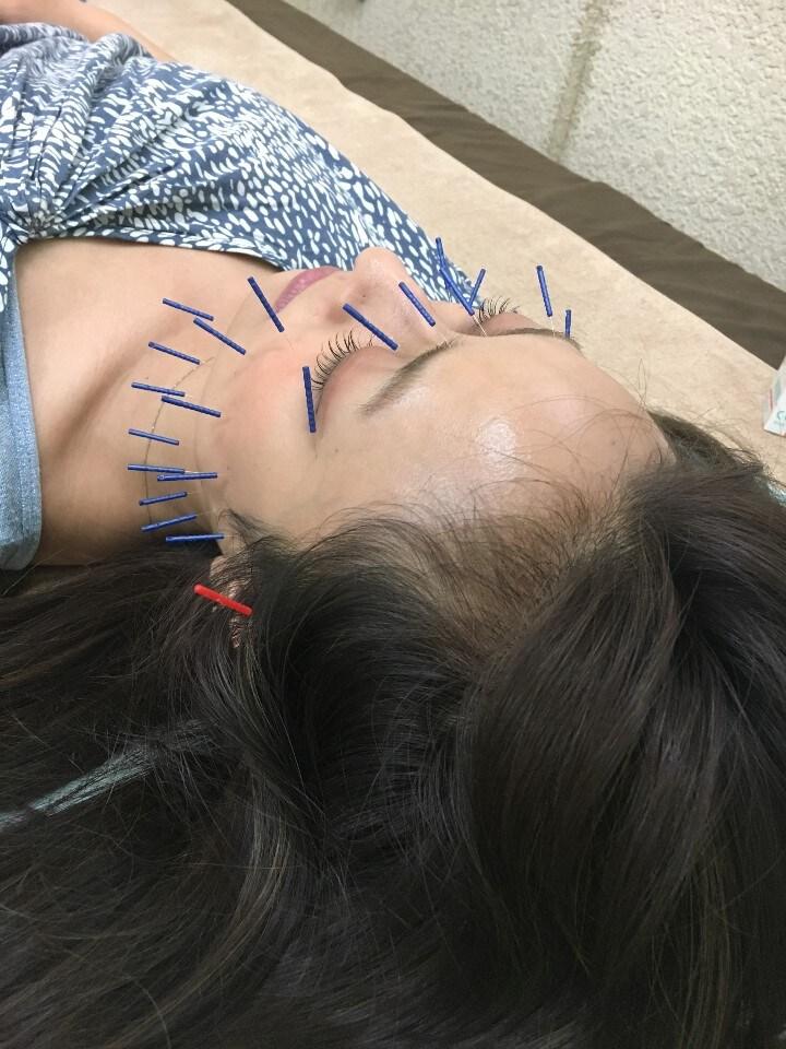 【モニター募集】 美容鍼 43400円➡26040円