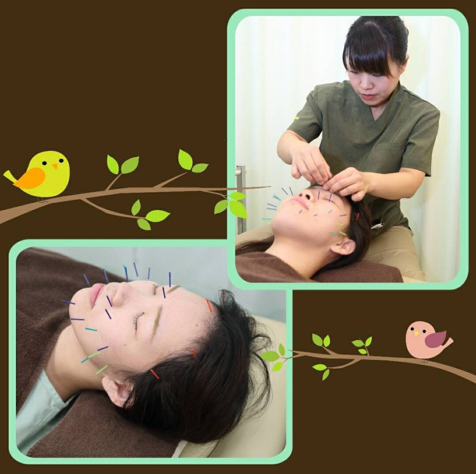 【初回限定】美容小顔鍼灸