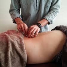 痛みの治療60分(電気+鍼灸+揉みほぐしなど60分)