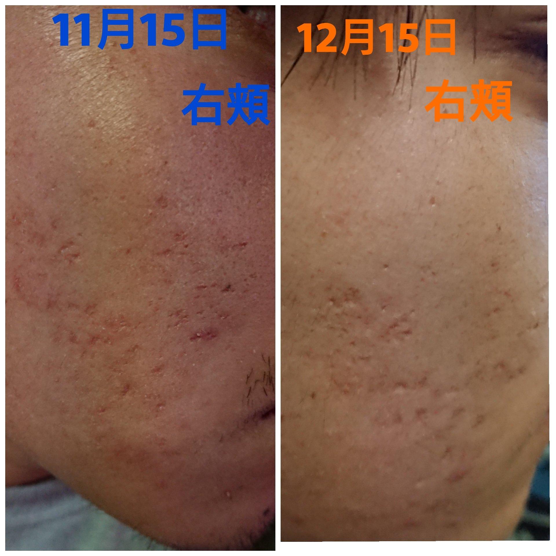 ヒト幹細胞培養美容液「R」肌の変化②