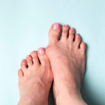 9月23日(水)19:00外反母趾気功治療体験セミナー /  外反母趾でお悩みの方か、自分の身体で体験できて、施術の仕方も学べるセミナーです。 どんな外反母趾でも改善できる治療です。同じ悩みのお友達がいましたら、是非ご一緒に体験とその技術も学んでみてください。