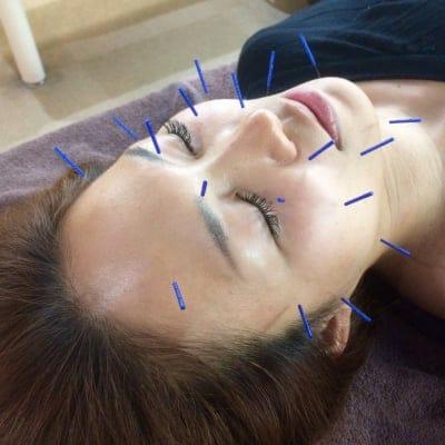 「顔+首肩+頭」への鍼施術。