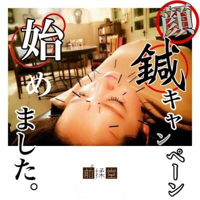 ☆★顔鍼キャンペーン実施中‼️★☆3回 X『顔鍼』=12,000円‼️(税込12,960円)