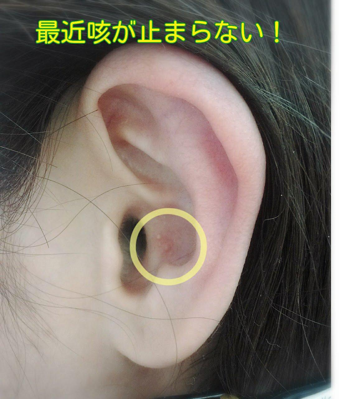 ☆お試しクーポン☆耳つぼセラピー体験 1000円(特許取得 耳つぼ刺激 透明シール)のイメージその3