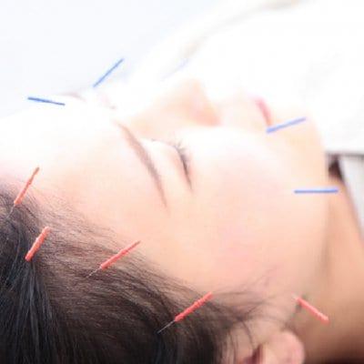 【美容鍼灸 お得な6回券 約90分/回 (お身体の治療も含まれます)】