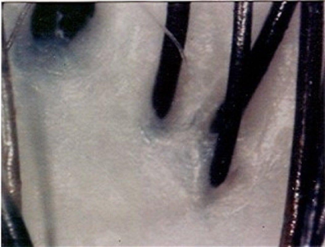 頭皮環境が気になる方必見!!【頭寒足熱美容法】 頭皮リラクゼーションエステ 基本Aコース(60分) 現地決済のイメージその3