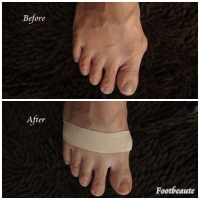 「外反母趾・開張足のための簡単セルフテーピング」読者限定コース