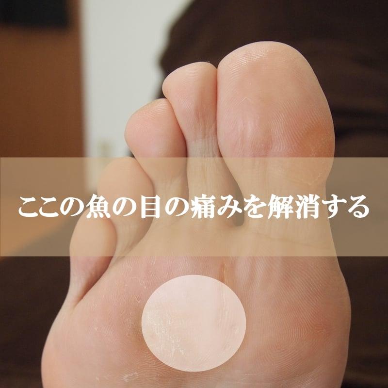 【足の中指つけ根の魚の目(ウオノメ)の痛みを解消する!】毎月3名 初回限定 フットボーテコースのイメージその1