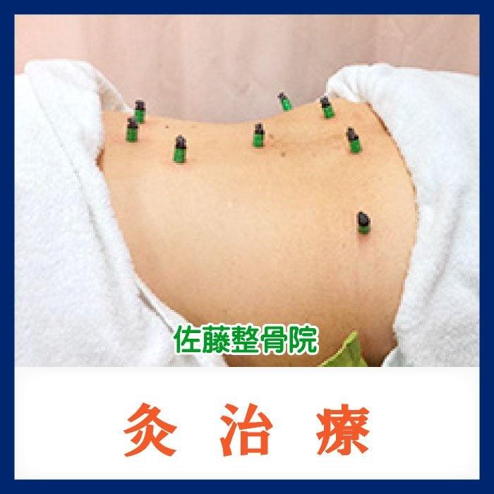 灸治療 ◆現地払い専用◆のイメージその1