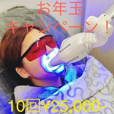 阪神西宮/MUGEN(ムゲン)鍼灸整骨院×GYM/お年玉キャンペーン!ホワイトニング10回チケット