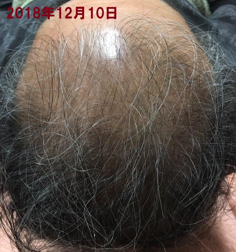 大好評につき追加モニター募集!髪の毛問題解決!モニター募集!60%OFF !比べてください!3か月7回で!某発毛サロンは150万円も?!男女30名様限定!薄毛・やせ毛のモニター大募集のお知らせ。まったく新しい髪毛法「刺さない針髪毛」で頭皮にしっかり届ける。最先端の頭皮ケア!!カウンセリング無料!お気軽にご相談下さい。のイメージその3