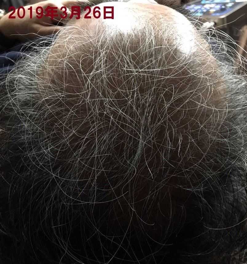 大好評につき追加モニター募集!髪の毛問題解決!モニター募集!60%OFF !比べてください!3か月7回で!某発毛サロンは150万円も?!男女30名様限定!薄毛・やせ毛のモニター大募集のお知らせ。まったく新しい髪毛法「刺さない針髪毛」で頭皮にしっかり届ける。最先端の頭皮ケア!!カウンセリング無料!お気軽にご相談下さい。のイメージその4