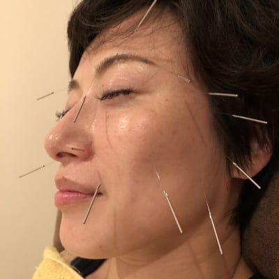 美容鍼&頭ほぐしコース60分