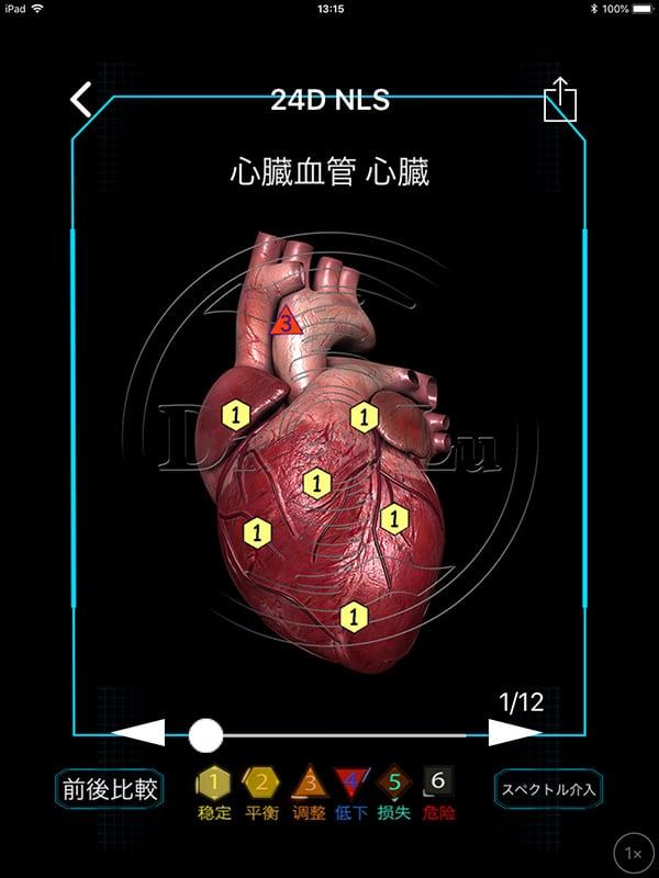 【現地払い】量子波動器の体内調整(全身ツボ押し)15分個別体験・脅威の水素入り珈琲付 江の島/腰越|量子波動分析器による全身調整のイメージその5