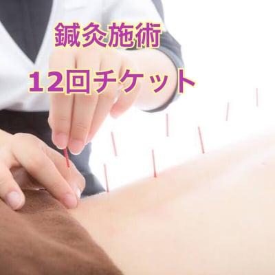 延長鍼灸施術 12回券 イベント価格