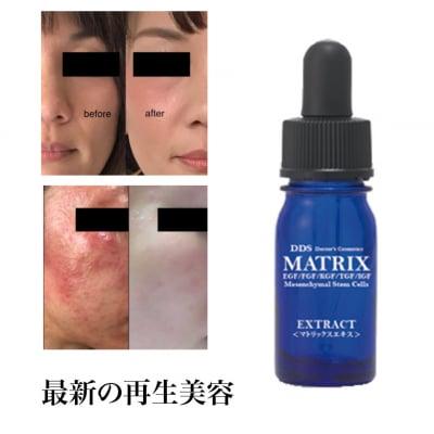 MATRIX エキス