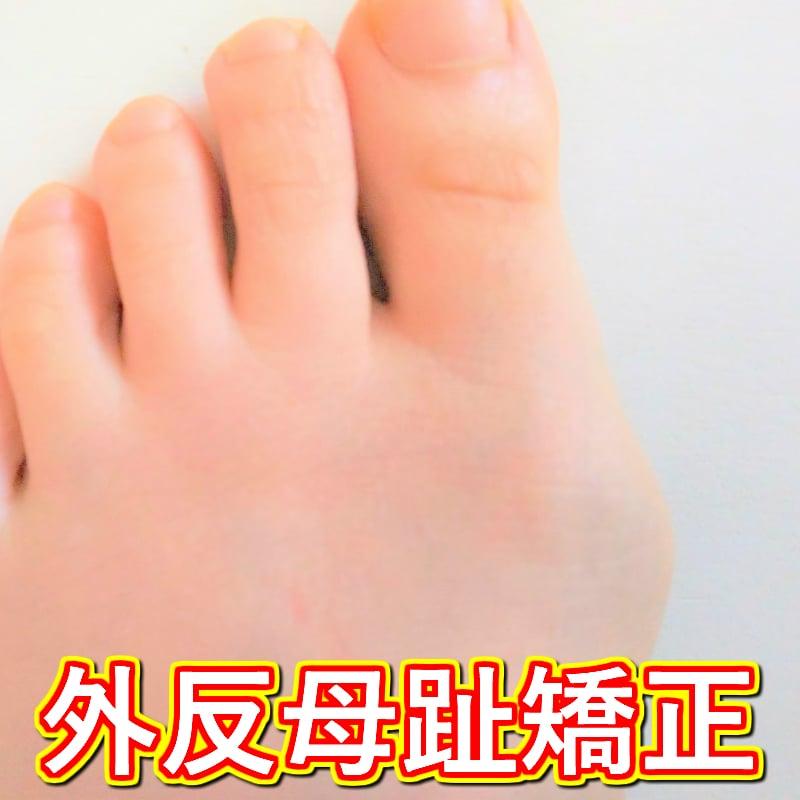 外反母趾矯正 回数券(現地払い専用)のイメージその1