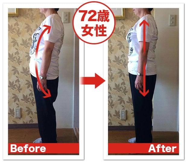 【1回券】姿勢改善のイメージその3