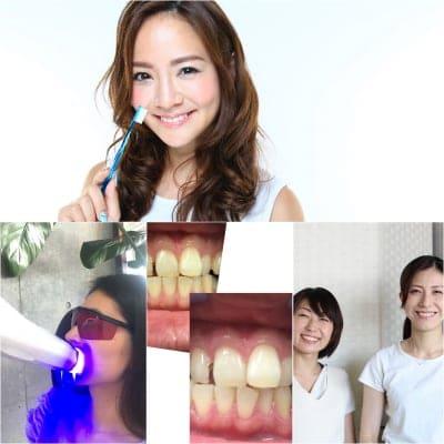 【白くなる!5歳若返る!】歯のホワイトニング13分×2回連続照射