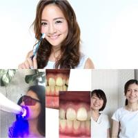 早い者勝ち【9/23・9/24限定】歯のホワイトニング連続2回が大特価