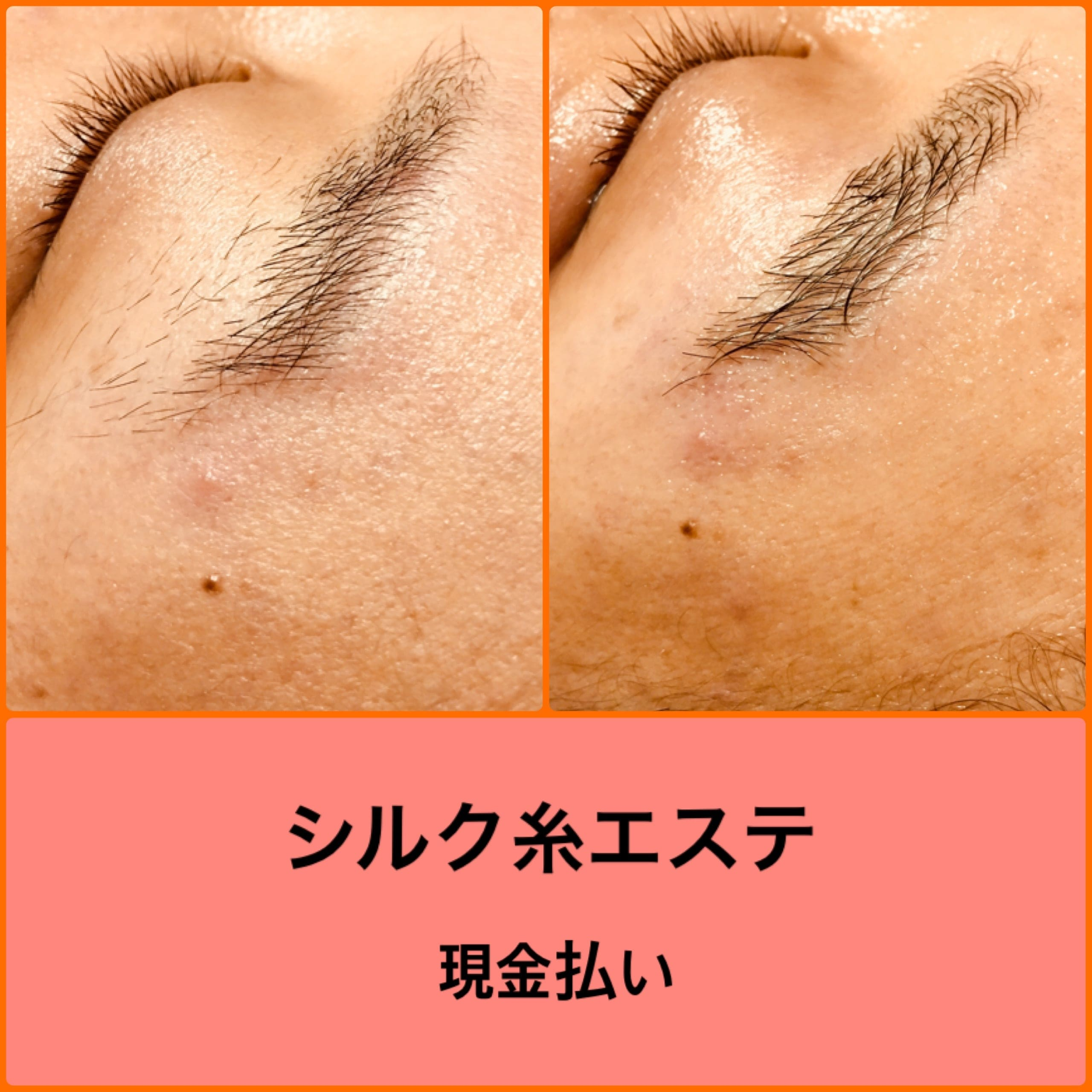 フェイスコース【糸による顔の脱毛】シルク糸エステ のイメージその5