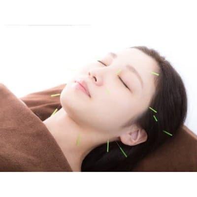 美顔鍼灸施術(シンプルコース)