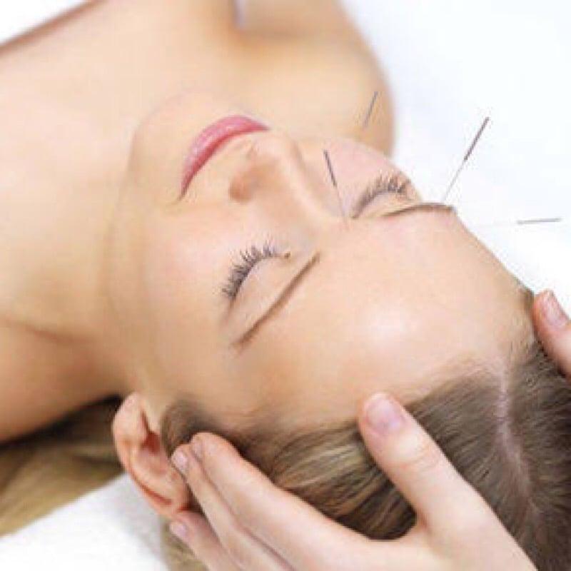 【人気No1】トータルケア+美容鍼灸(シンプル)のイメージその1