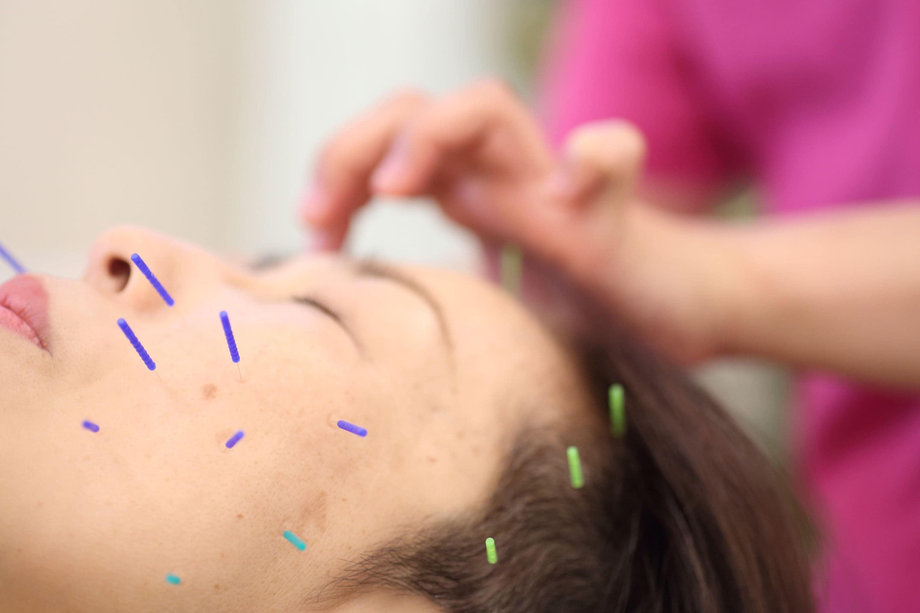 美容小顔リラクゼーション鍼灸チケットのイメージその3