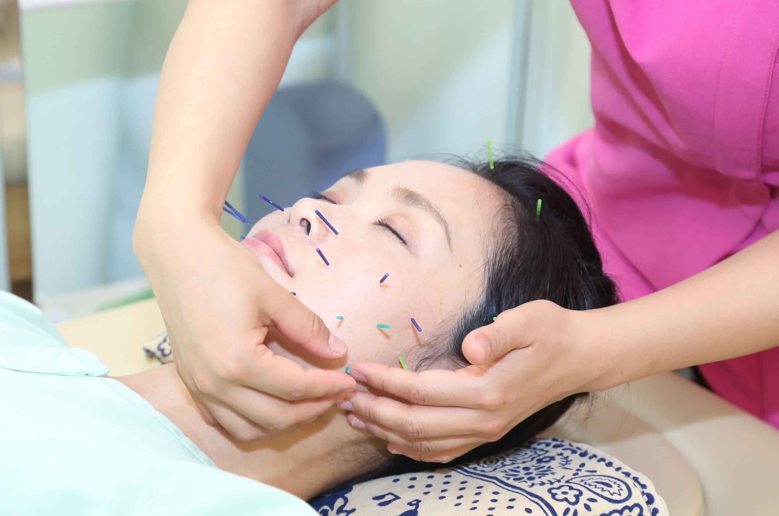 美容小顔リラクゼーション鍼灸チケットのイメージその2