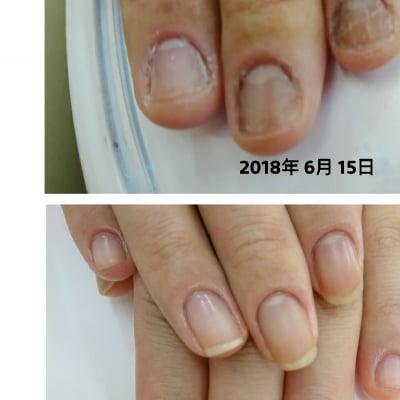 深爪を美爪へ!爪コンプレックス解消プログラム税込6600円