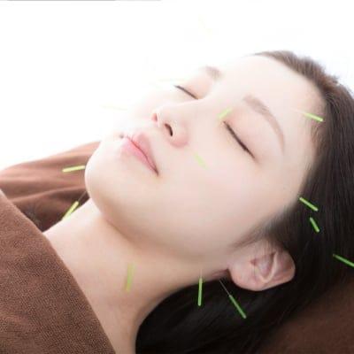 美容鍼コース施術チケット|シミ・シワ・ニキビ・ほうれい線・むくみ.当院にお任せ下さい!
