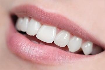 【現地払いのみ】歯のセルフホワイトニング 6回チケットのイメージその1