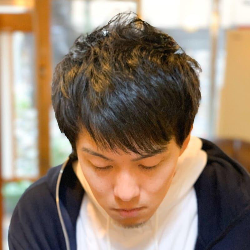【店頭払い専用】頭皮スキャルプのイメージその1