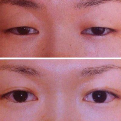 小顔+頭蓋骨調整+ゆらぎ整体 80分 桜サローネ名古屋 碧南