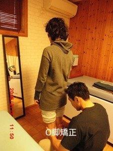 O脚矯正  神戸市垂水区 はた整骨院 O脚でお悩みでしたら当院にお任せ下さい。