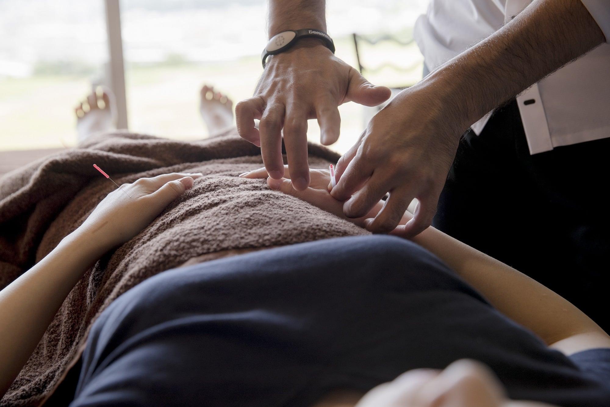 ◆現地払い限定チケット◆初めての方限定!鍼灸治療お試しチケット!のイメージその1