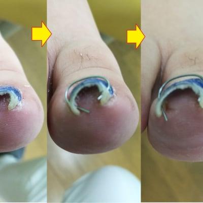 巻き爪の治療 ワイヤー矯正【初診】
