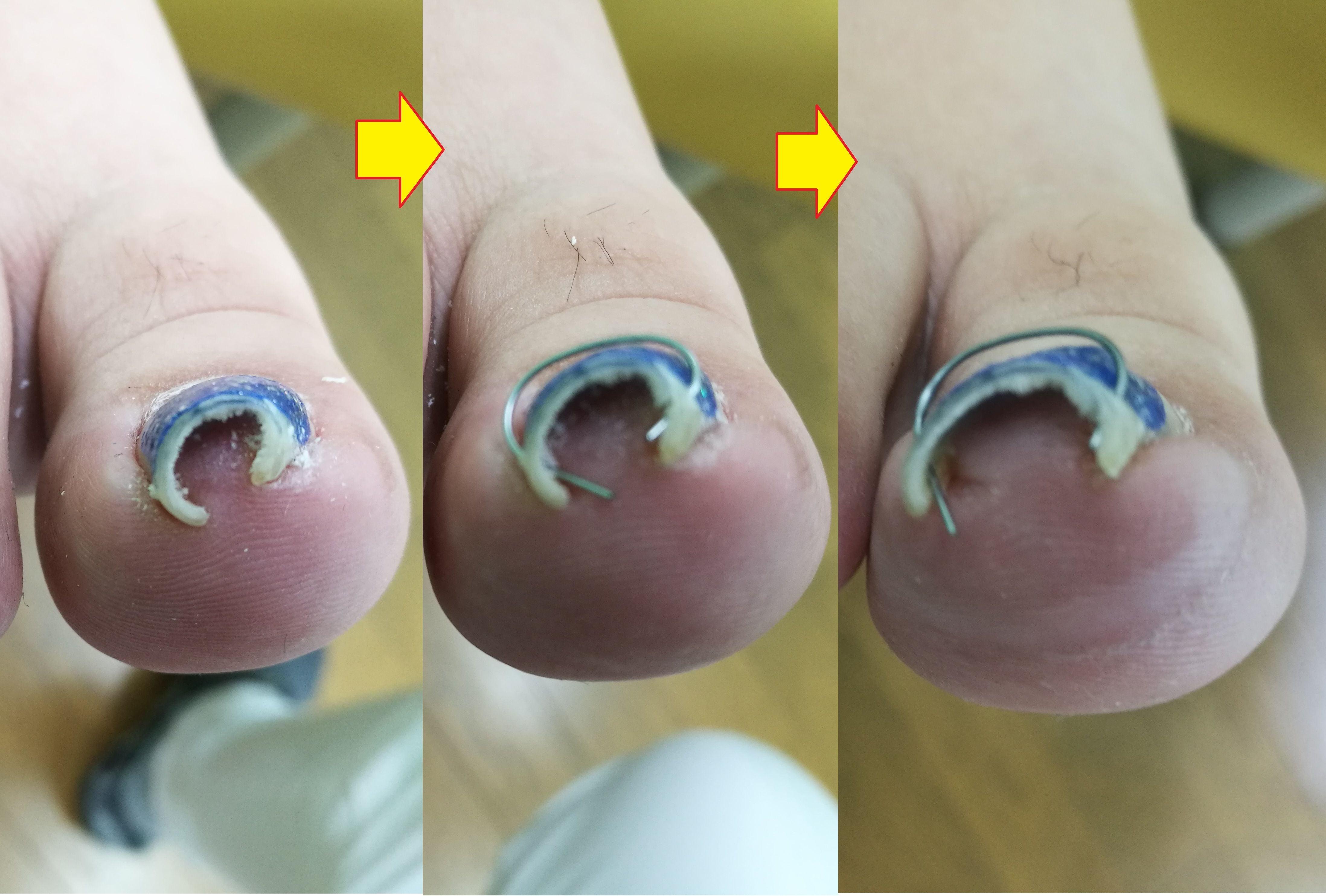 巻き爪の治療 ワイヤー矯正【初診】のイメージその1