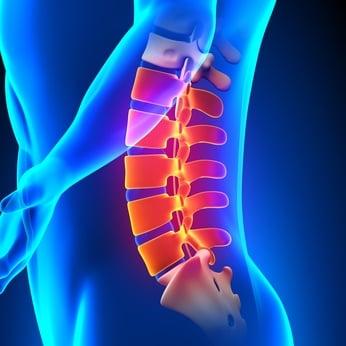 【初回限定】もう一度スッキリ楽に歩ける脊柱管狭窄症整体