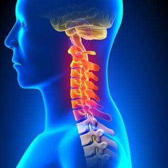 【初回限定】辛い痛みから解放されてスッキリ楽になる頚椎ヘルニア整体のイメージその2