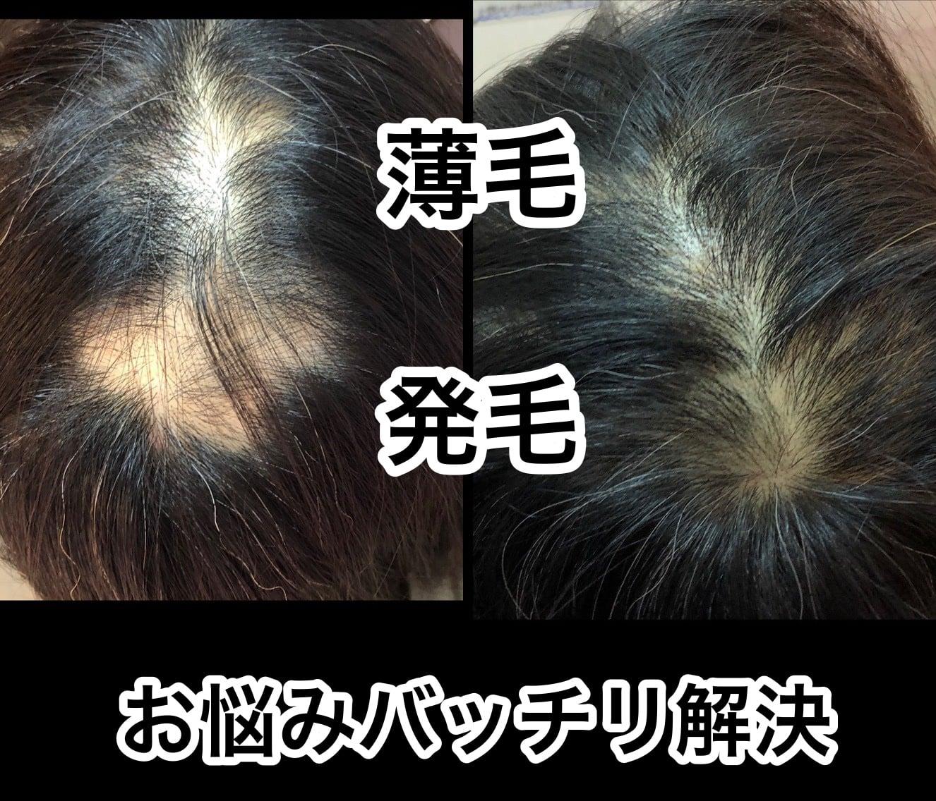 ◇発毛◇お悩みスッキリ整体「5回セット」のイメージその1