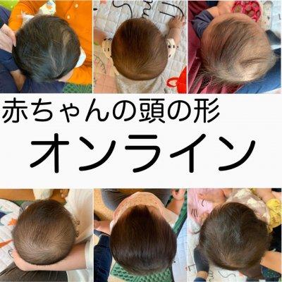 【オンライン相談】【初診】赤ちゃんの頭の形