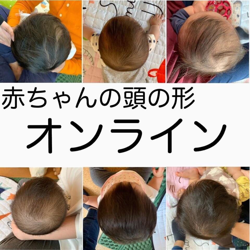 【オンライン相談】【初診】赤ちゃんの頭の形のイメージその1