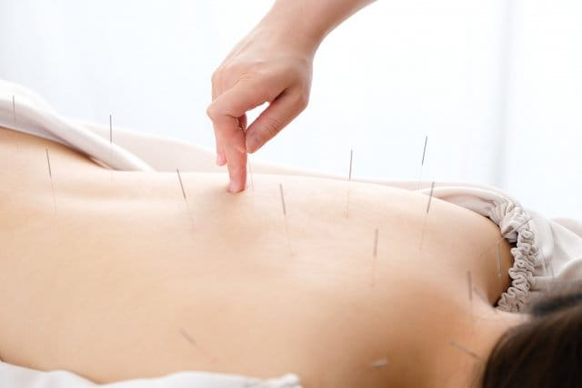 【店頭払い専用】鍼灸施術 (肩こり・腰痛・めまい・頭痛・婦人科系・カラダの痛み・不調)のイメージその3