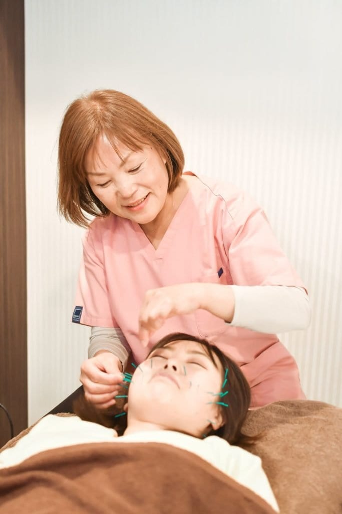 【店頭払い専用】美容鍼施術 (美肌・小顔・幸せ顔・目の疲れ・頭痛・顎こり)のイメージその1