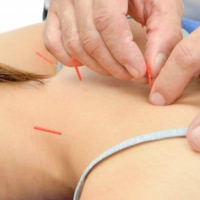 【店頭払い専用】鍼灸施術 (肩こり・腰痛・めまい・頭痛・婦人科系・カラダの痛み・不調)