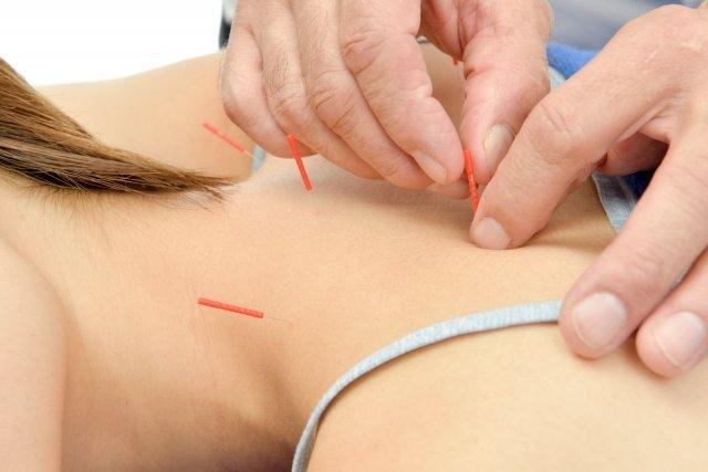 【店頭払い専用】鍼灸施術 (肩こり・腰痛・めまい・頭痛・婦人科系・カラダの痛み・不調)のイメージその1